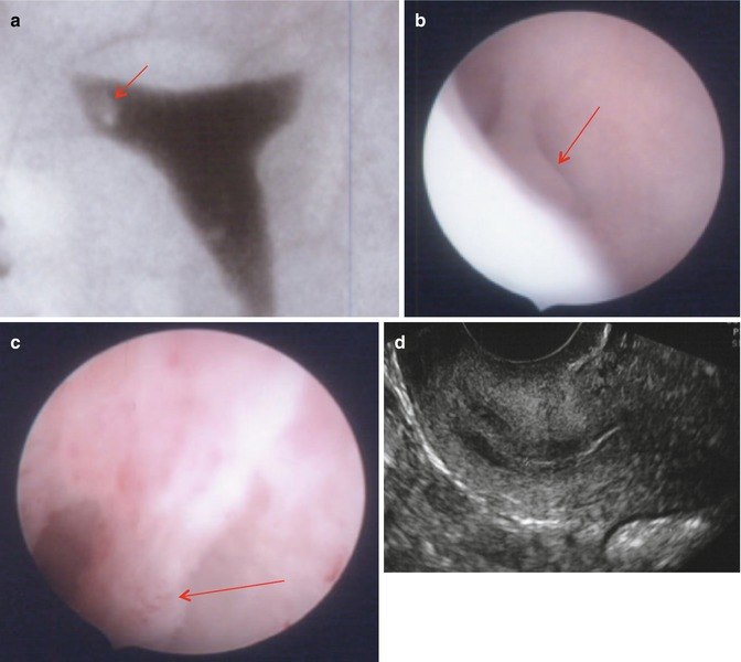 Endometrial Polyps | Radiology Key