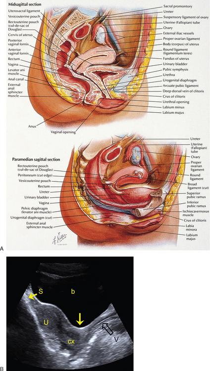 Cul-de-sac De Douglas : cul-de-sac, douglas, NORMAL, ANATOMY, FEMALE, PELVIS, TRANSVAGINAL, SONOGRAPHY, Radiology