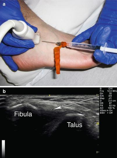 Technique Ankle Injection