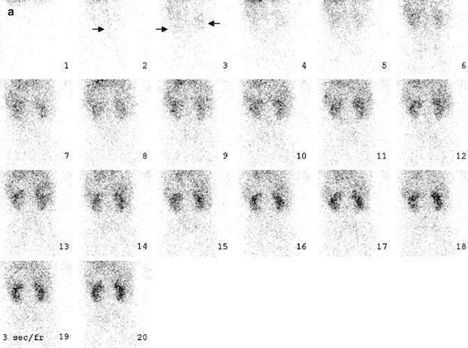 Principles of Nuclear Medicine Imaging | Radiology Key