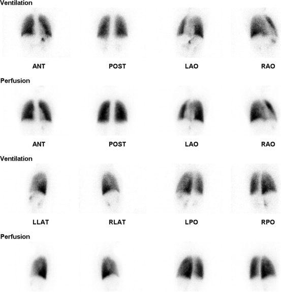 Pediatric Nuclear Medicine in Acute Clinical Setting