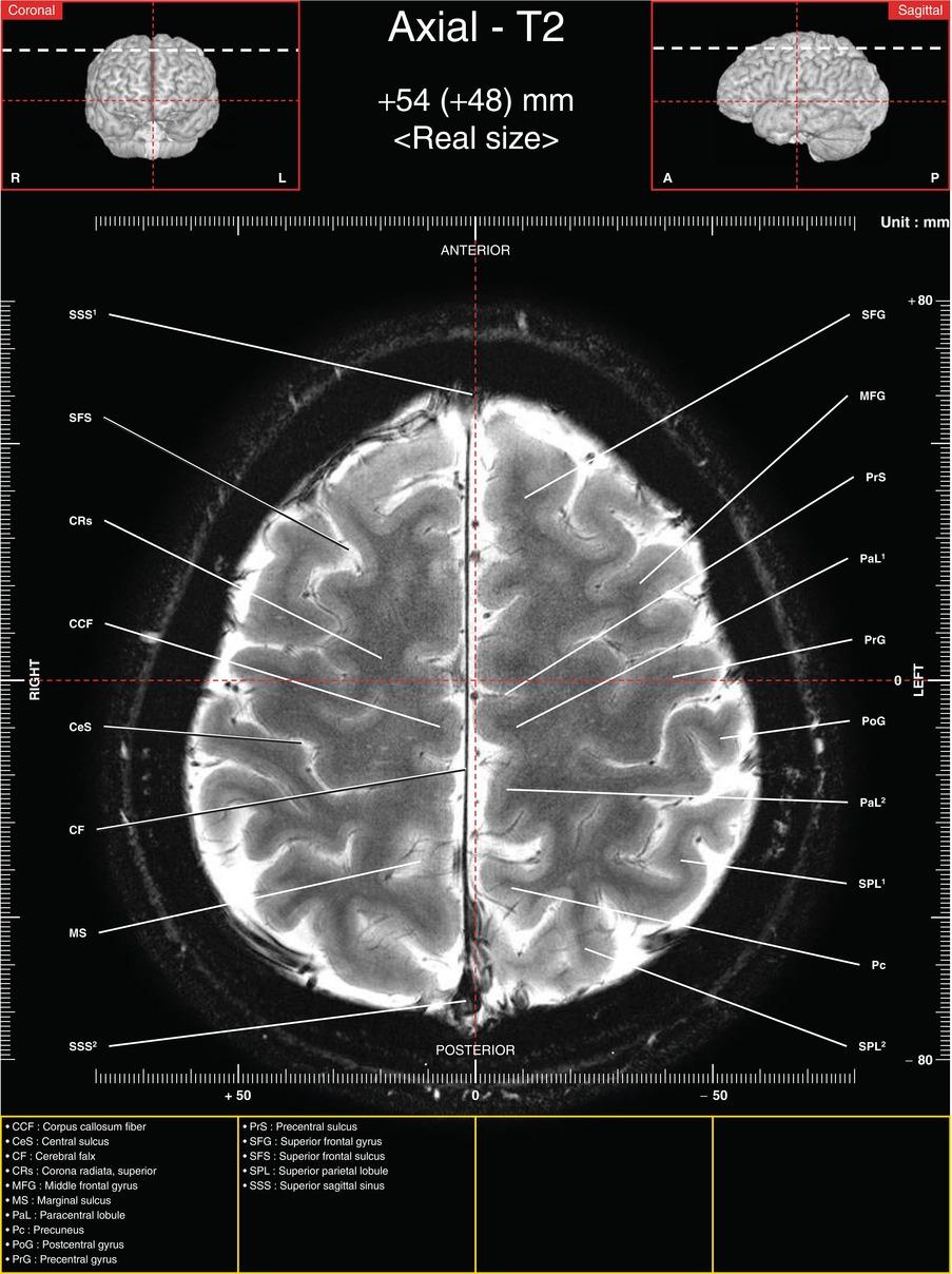 White Matter Brain Anatomy Axial Mri Images