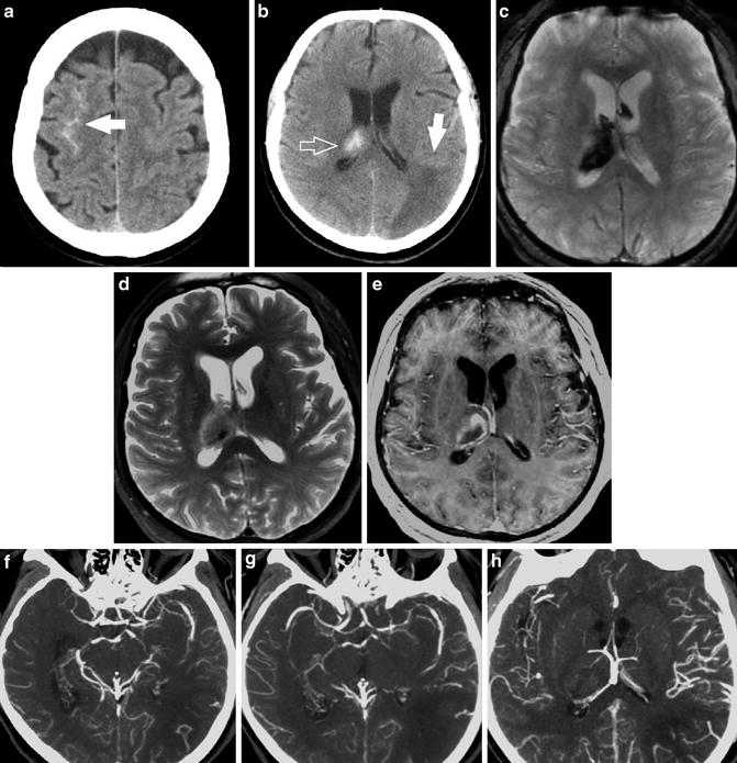 Imaging of Spontaneous Nontraumatic Intracerebral ...