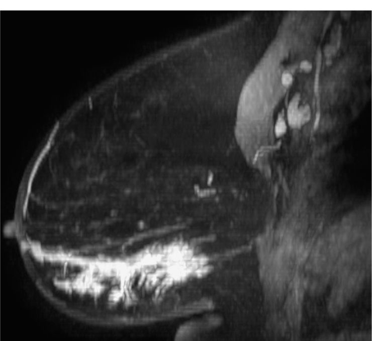 Difficult Cases | Radiology Key