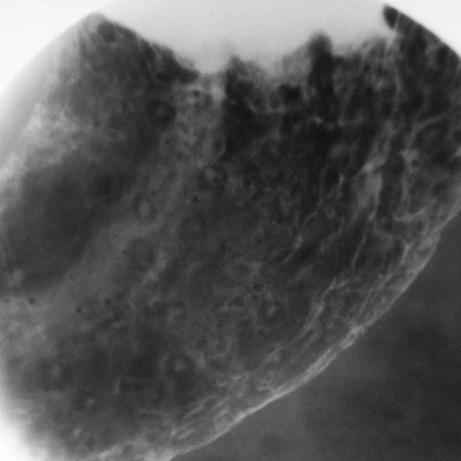 HsuWC1e-ch002-image007b