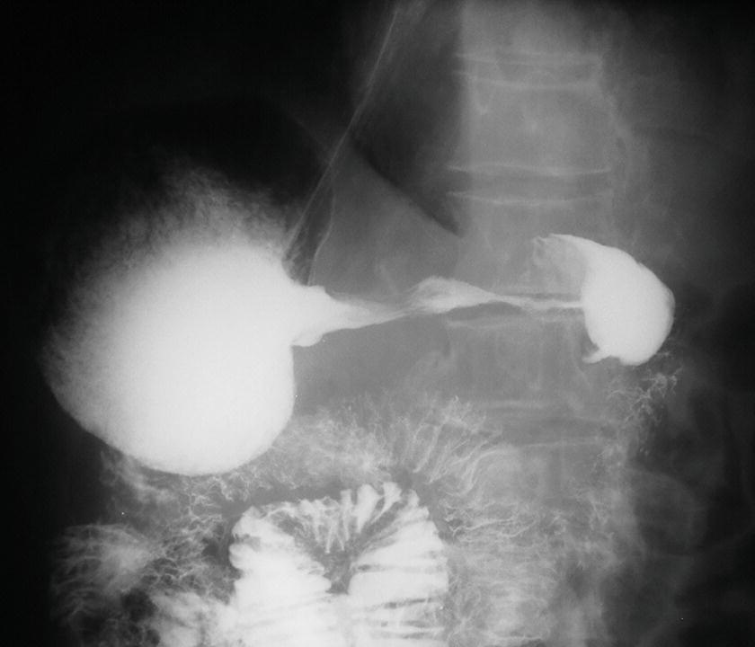 HsuWC1e-ch002-image023b