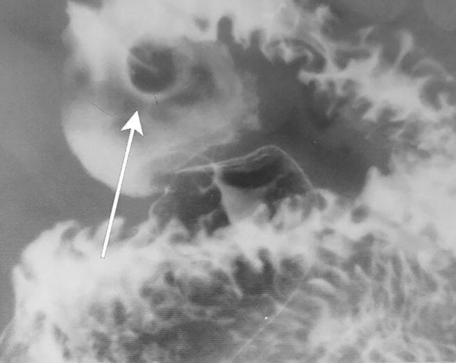 HsuWC1e-ch003-image014c