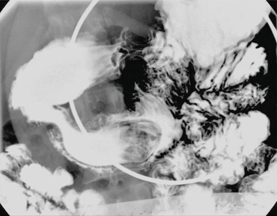 HsuWC1e-ch003-image034