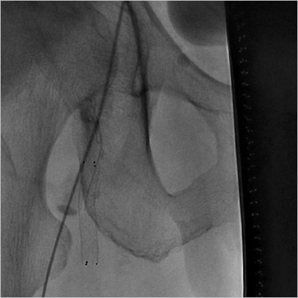 Case-Based Procedure-Related Complications | Radiology Key