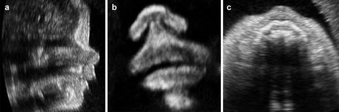 9 weeks pregnant 4d ultrasound