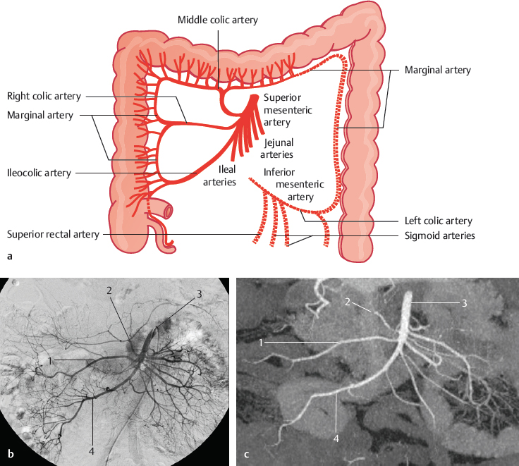 Superior Mesenteric Artery And Colic Arteries Radiology Key