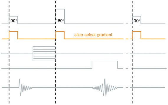 Diagram shows timing of slice-select gradient in spin-echo pulse sequence.
