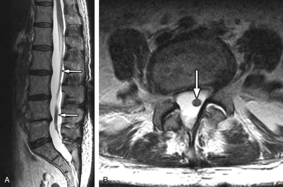Arachnoiditis | Radiology Key