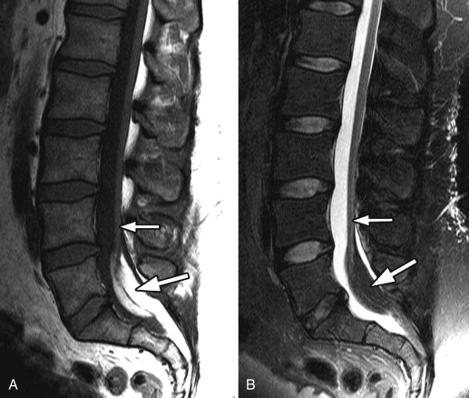 Tethered Spinal Cord Radiology Key Persistence of caudal cells that differentiate toward fat could produce filar lipomas. tethered spinal cord radiology key