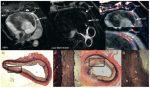 Atherosclerotic Plaque Imaging: Coronaries