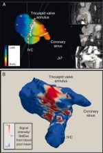 Interventional Cardiovascular Magnetic Resonance