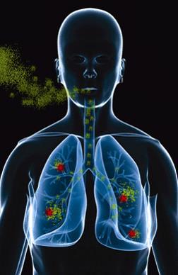 Health Affects of Radon