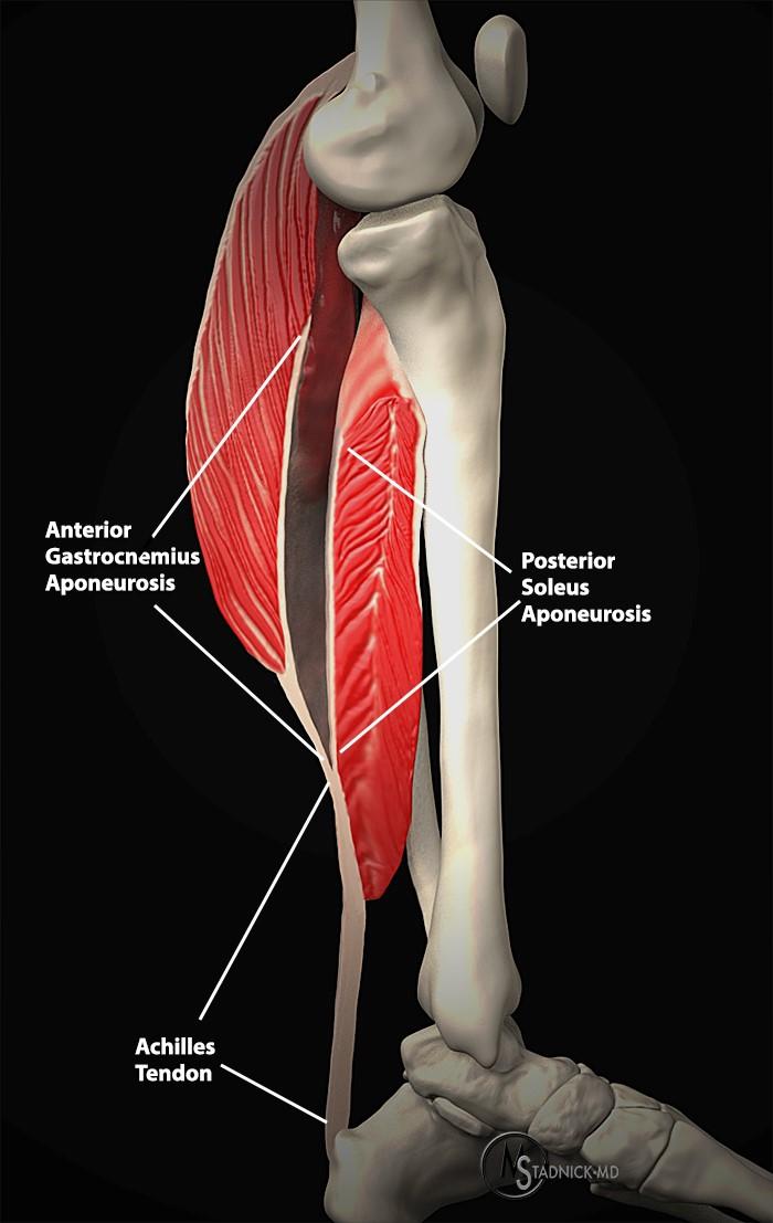 Calf Muscle Tear Ultrasound