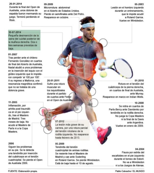 Infographic Rafael Nadal Injuries