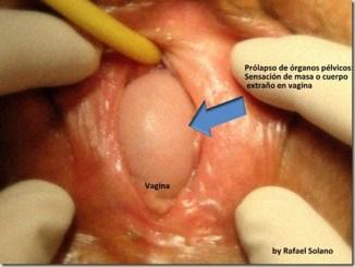 Urología Ginecológica: Prolapso de Órganos Pélvicos