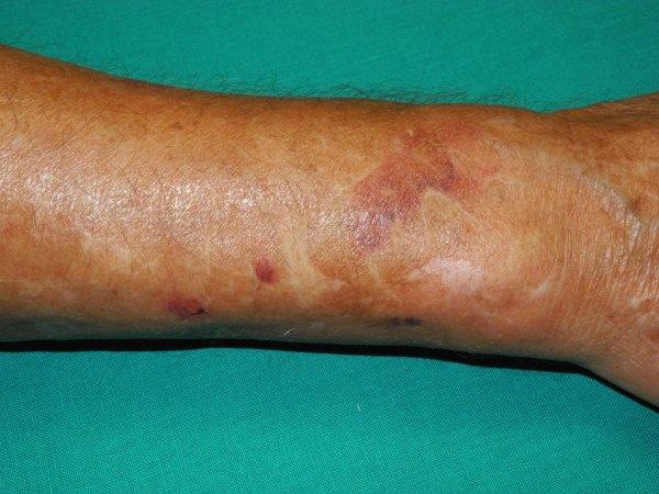 Senile Purpura On Skin - Year of Clean Water