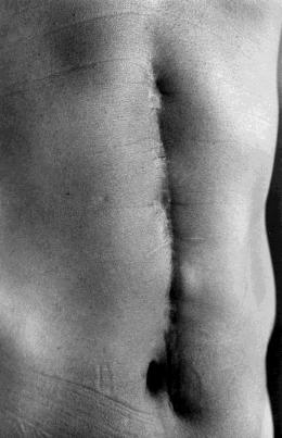 Scars #27 (Illness 1977), 1999. Ishiuchi Miyako (Japanese, born 1947). Gelatin silver print. EX.2015.7.104. © Ishiuchi Miyako. Collection of the National Museum of Modern Art, Tokyo.