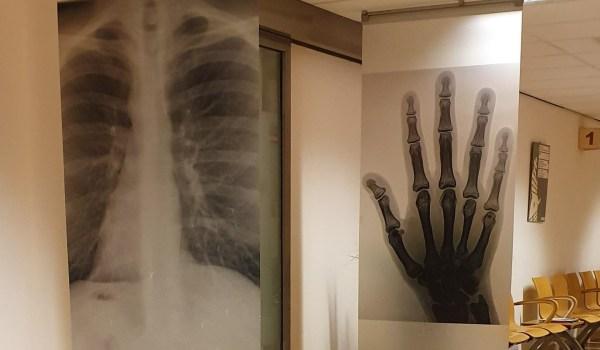 Wachtkamer van Sint Jansdal ziekenhuis met rontgenfoto's