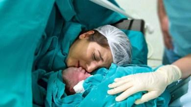 صورة هل الولادة القيصرية آمنة مقارنة مع الولادة الطبيعية؟