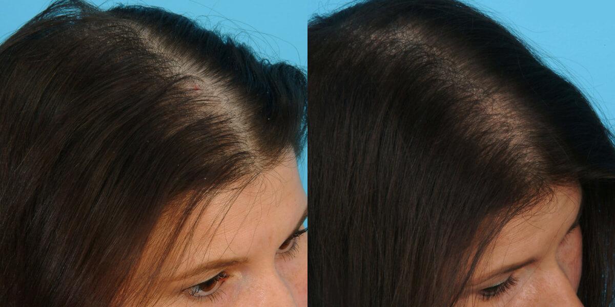 Почему густые волосы выпадают