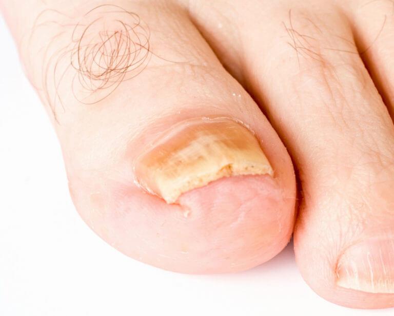 Нашатырный спирт от грибка на ногтях ног отзывы