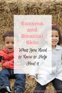 Help Heal Eczema on Biracial Skin