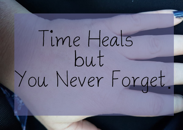 Time Heals but You Never Forget- fi