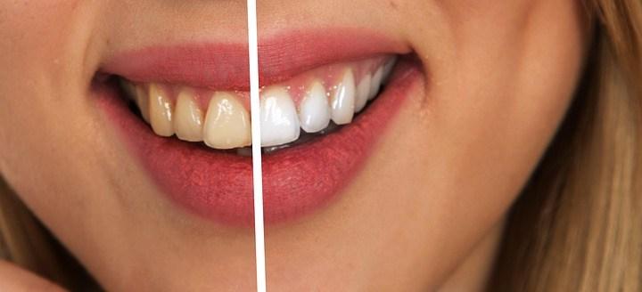 29b000e2e Fumante  Cuidados que você deve ter com seus dentes - Blog Rais ...