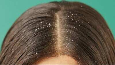 Shampoo untuk rambut ketombe