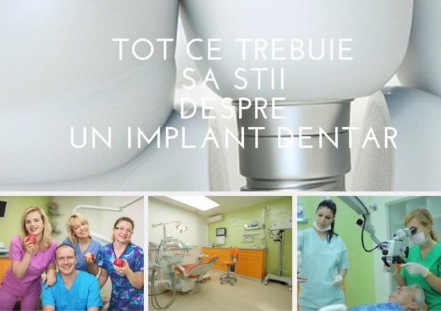 Tot ce trebuie sa stii despre un implant dentar