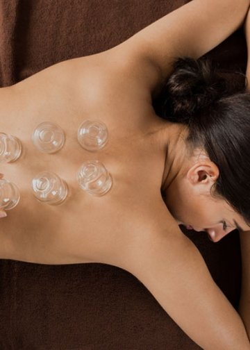 lady with cupping massage on her back