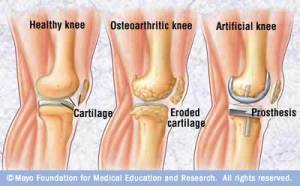 Double knee replacement surgery – Part 1: Planning ahead