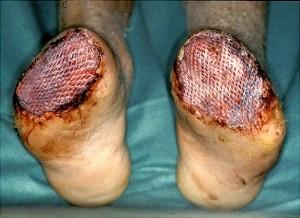 Slika 5 - Krn stopala prekrit s prostim kožnim presadkom