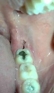 What Does A Dry Socket Look Like Pictures : socket, pictures, Wisdom, Tooth, Irrigation, Instructions, Loveland, Range, Facial, Surgery