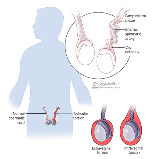 The Function Of The Pampiniform Plexus Of Veins Is To,