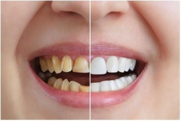 What Are the Different Types of Cosmetic Dentistry Procedures Available?