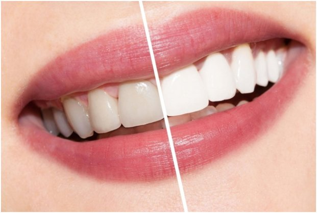 Facts To Know About Teeth Whitening