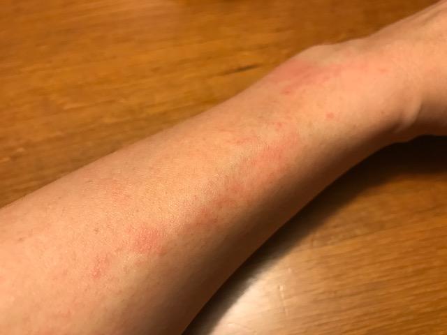 紫外線アレルギーかもしれない腕
