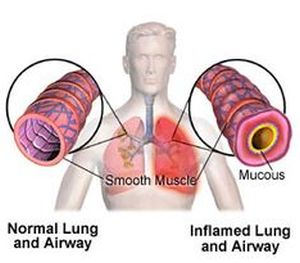 Chest pain due to inflammed lung airway.
