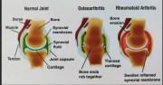 Arthritis-Part 2-Osteoarthritis-Signs and Symptoms