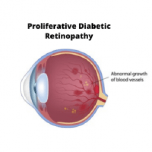 Non proliferative Diabetic Retinopathy 2 e1599233618768