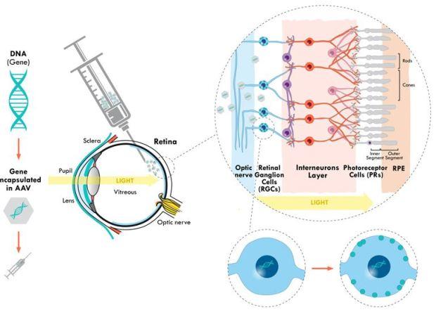 introducerea unei gene funcționale la niveulul retinei pentru a substitui funcția genei defecte