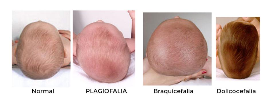 Plagiocefalia-osteopata-palma de Mallorca