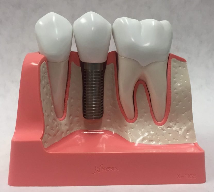 Image of single tooth replaced by dental implant