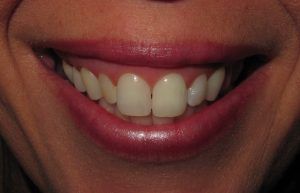 image of tooth after whitening